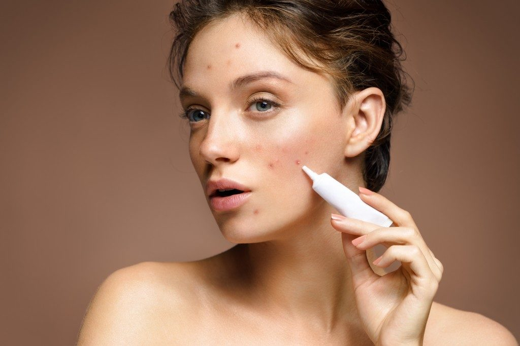 applying cream on pimples