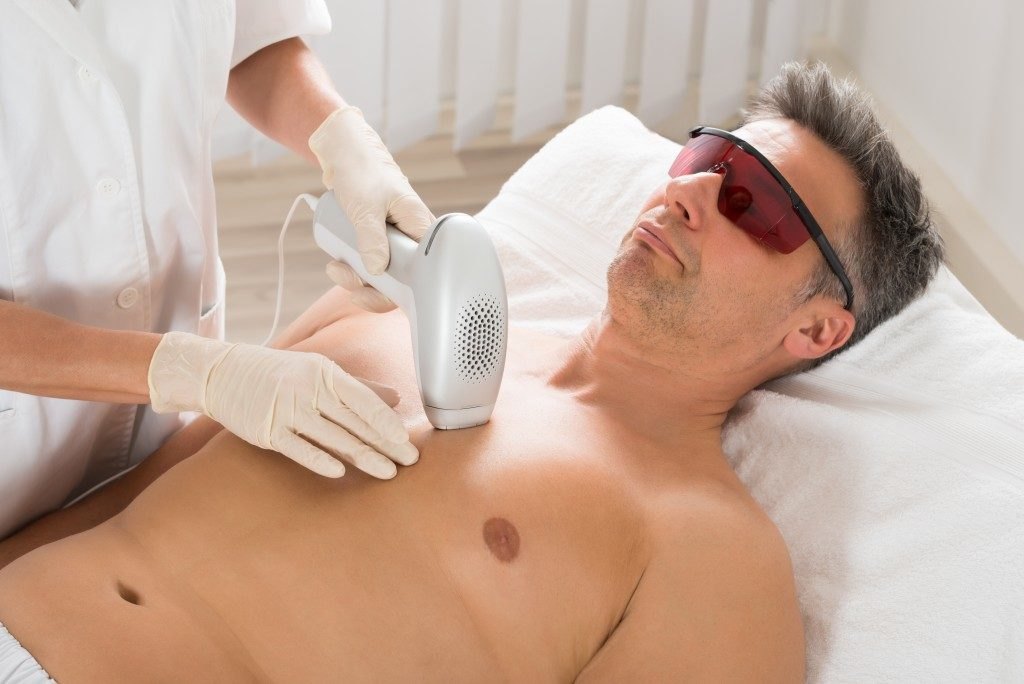 chest hair laser hair removal for man