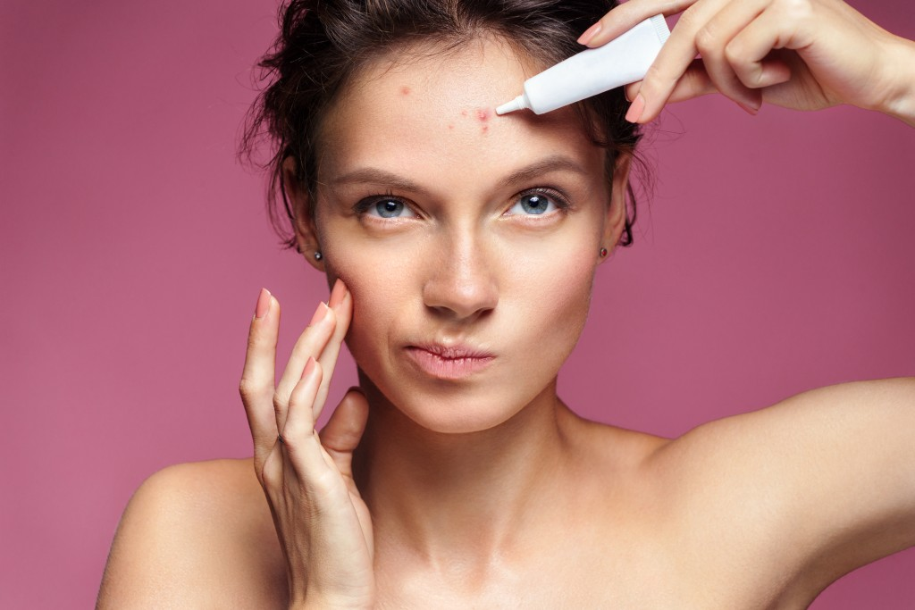 Woman applying something on her acne